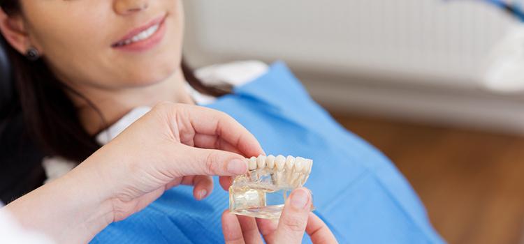 インプラントと入れ歯のそれぞれのメリットとデメリット
