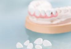 質や費用はどう違う? 人工歯に使うセラミックの種類と特徴
