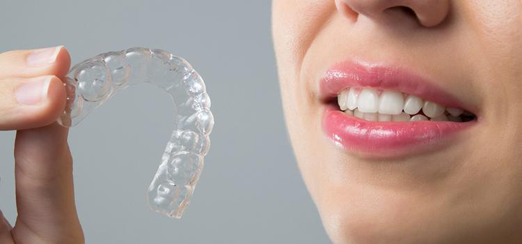 歯ぎしりからインプラントを守る方法
