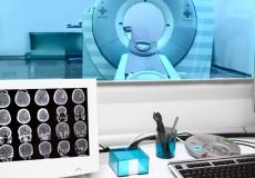 歯科インプラント、CTやMRIでの影響は?