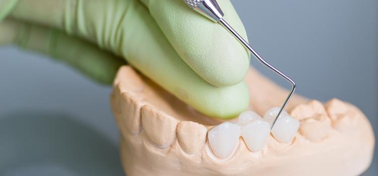 インプラントと天然歯をつなぐブリッジ治療は可能なの?