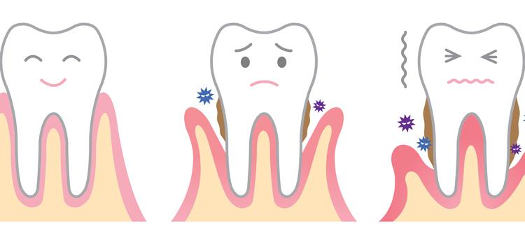 歯周病を引き起こす4つの因子とは?