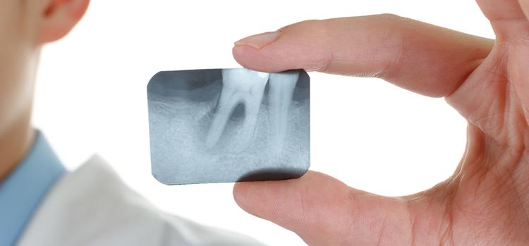 インプラントでも「歯周病」に!? その原因とは?