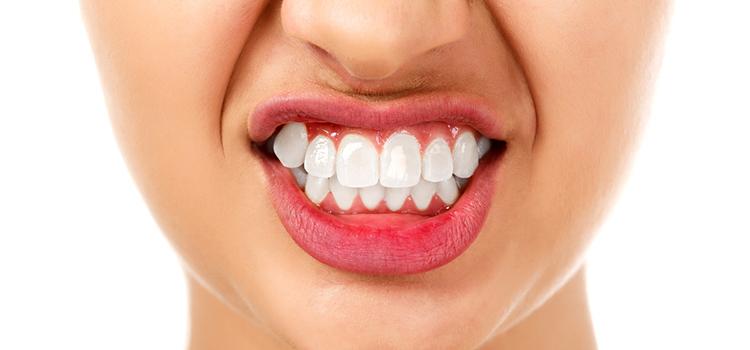 インプラントが外れる「歯ぎしり」の原因と対処法