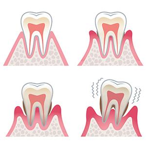 歯槽骨が不足する原因とは?