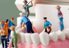 インプラント治療の仮歯がもつ大切な役割とは? 仮歯が取れてしまったら?